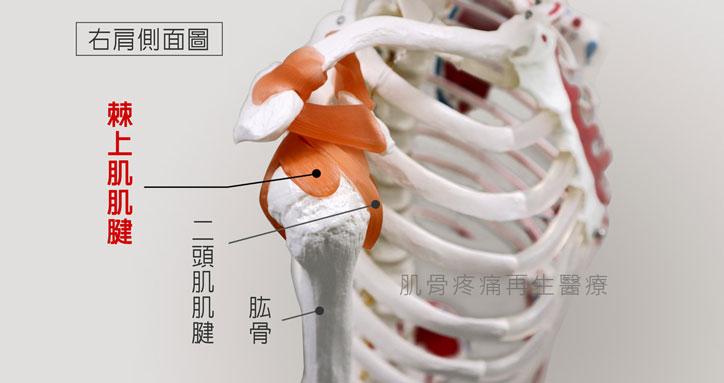 肩旋轉肌腱撕裂傷最常發生於棘上肌肌腱