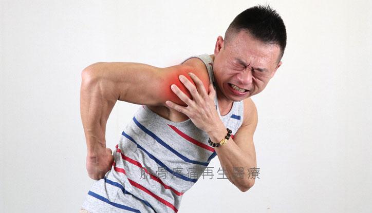 肩旋轉肌腱撕裂傷要強力修復裂傷避免併發五十肩