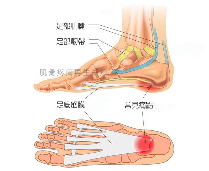 足底筋膜常見痛點解剖圖